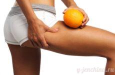 Борьба с целлюлитом: 5 способов повысить упругость кожи